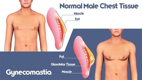 loss of breast tissue jpg 830x467